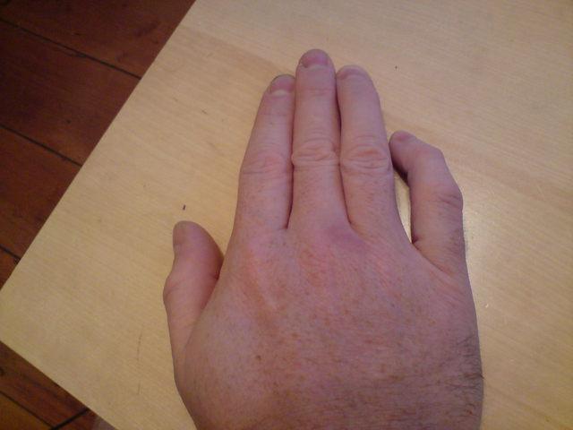 Pinky Bent Towards Ring Finger